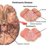 Parkinson et symbolisme